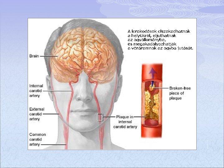 agyi régió látása)
