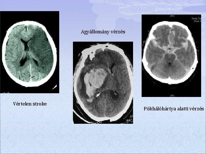 Agyállomány vérzés Vértelen stroke Pókhálóhártya alatti vérzés