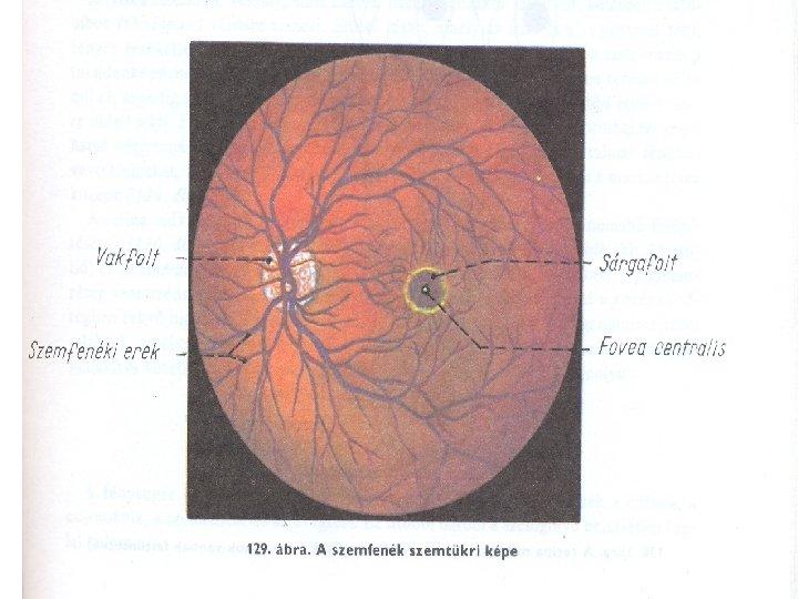 hol javította ki a látását