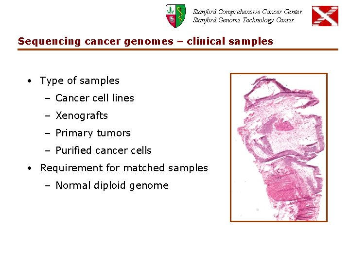 Stanford Comprehensive Cancer Center Stanford Genome Technology Center Sequencing cancer genomes – clinical samples