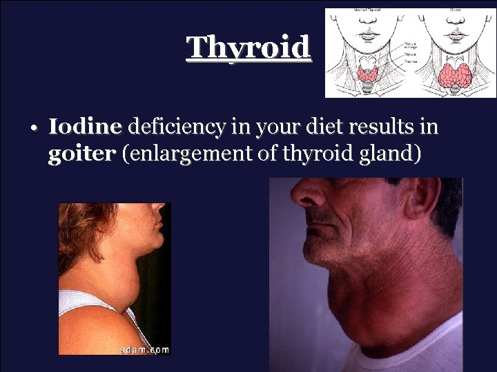 Thyroid • Iodine deficiency in your diet results in goiter (enlargement of thyroid gland)