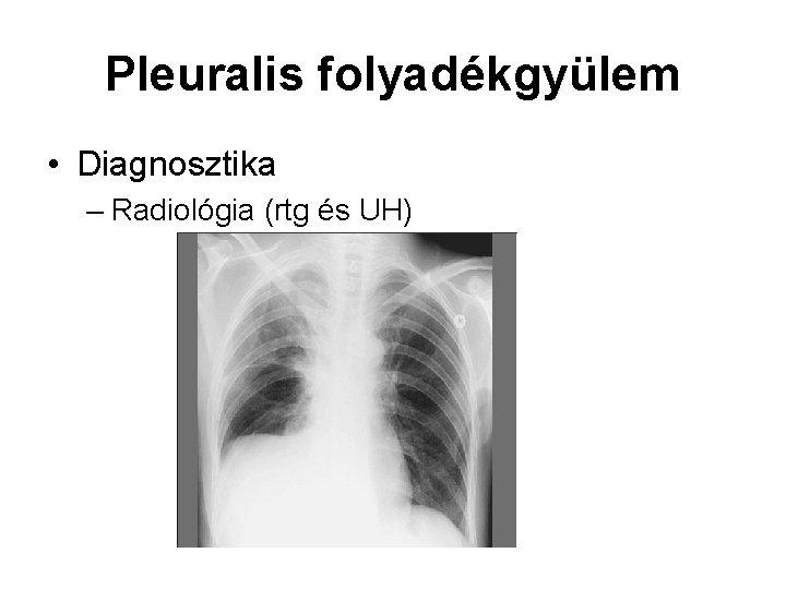 Pleuralis folyadékgyülem • Diagnosztika – Radiológia (rtg és UH)
