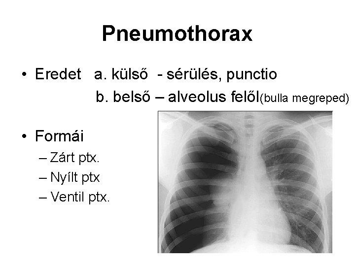 Pneumothorax • Eredet a. külső - sérülés, punctio b. belső – alveolus felől(bulla megreped)