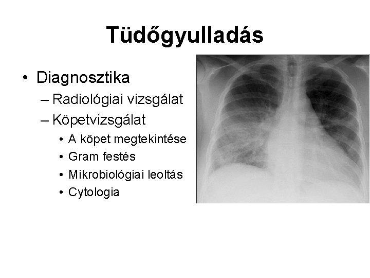 Tüdőgyulladás • Diagnosztika – Radiológiai vizsgálat – Köpetvizsgálat • • A köpet megtekintése Gram