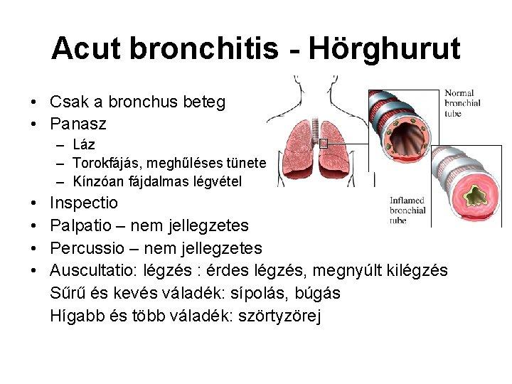 Acut bronchitis - Hörghurut • Csak a bronchus beteg • Panasz – Láz –