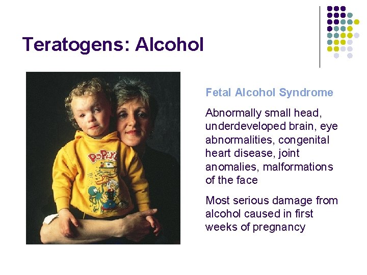 Teratogens: Alcohol Fetal Alcohol Syndrome Abnormally small head, underdeveloped brain, eye abnormalities, congenital heart