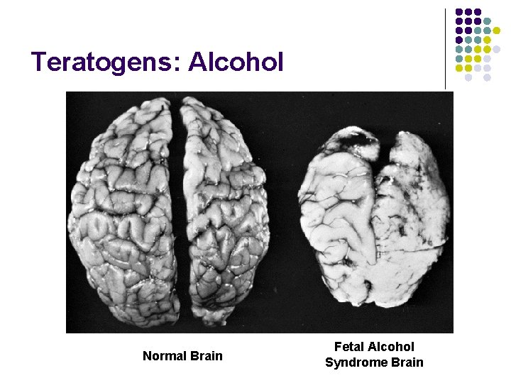 Teratogens: Alcohol Normal Brain Fetal Alcohol Syndrome Brain