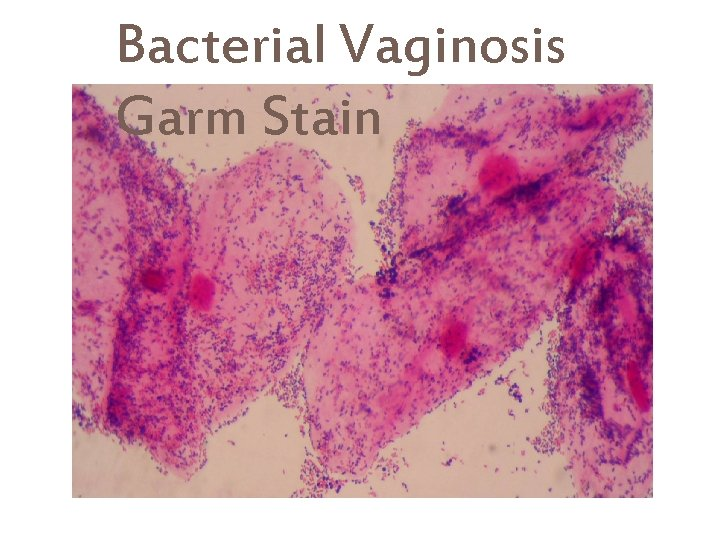 Stains vaginal discharge Vaginal Discharge