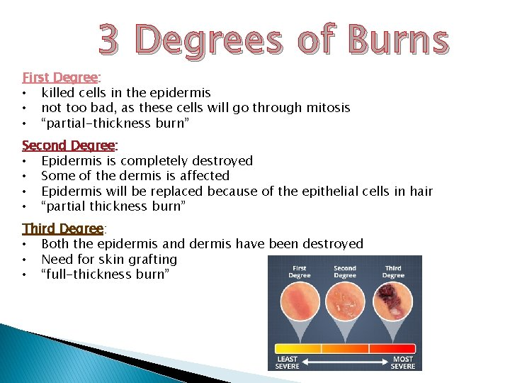 3 Degrees of Burns First Degree: • killed cells in the epidermis • not
