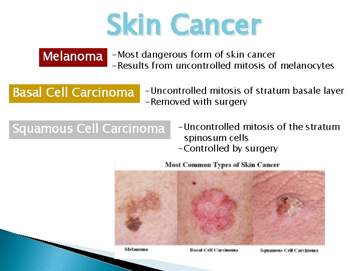 Melanoma Skin Cancer -Most dangerous form of skin cancer -Results from uncontrolled mitosis of