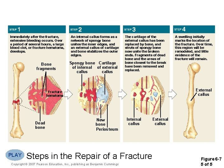 Immediately after the fracture, extensive bleeding occurs. Over a period of several hours, a