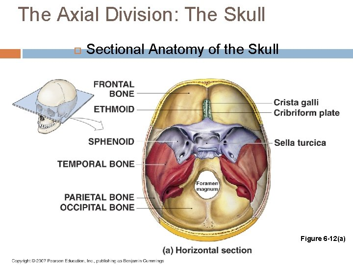 The Axial Division: The Skull Sectional Anatomy of the Skull Figure 6 -12(a)
