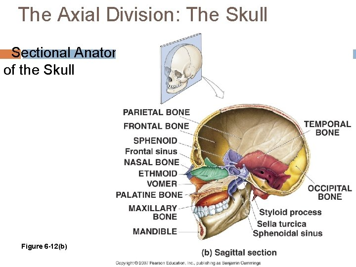 The Axial Division: The Skull Sectional Anatomy of the Skull Figure 6 -12(b)