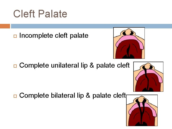 Cleft Palate Incomplete cleft palate Complete unilateral lip & palate cleft Complete bilateral lip