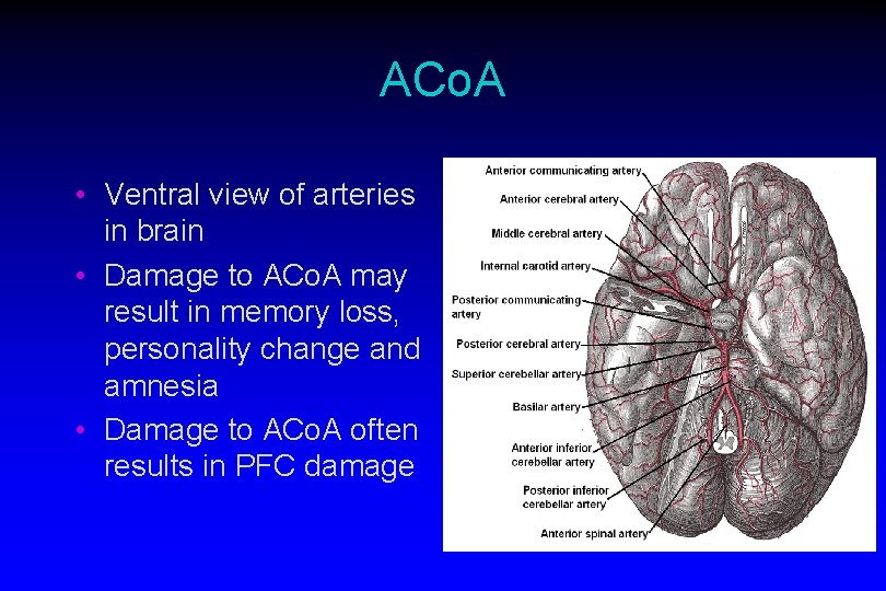 ACo. A • Ventral view of arteries in brain • Damage to ACo. A