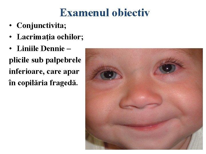 efect de rinită vasomotorie asupra vederii