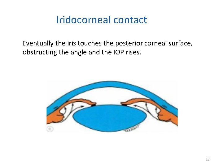 Iridocorneal contact Eventually the iris touches the posterior corneal surface, obstructing the angle and