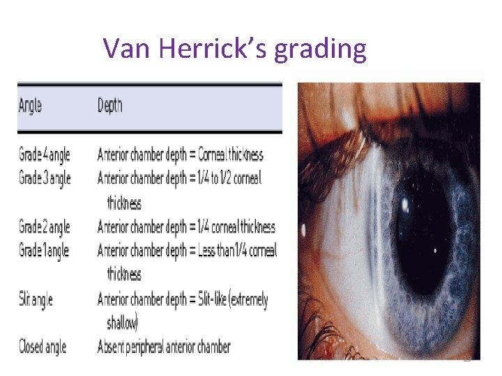 Van Herrick's grading 19