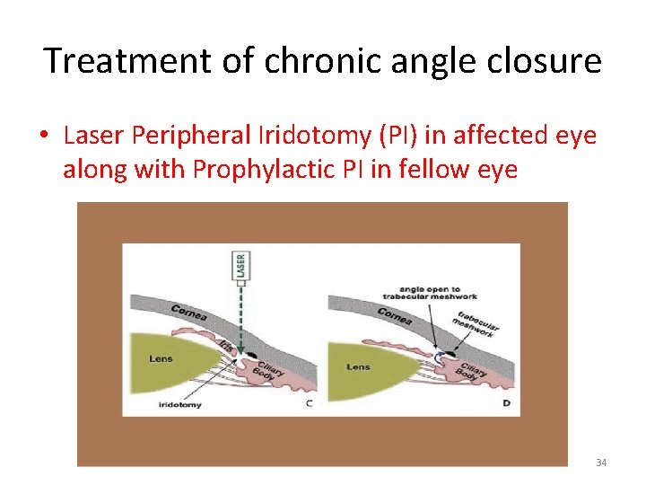 Treatment of chronic angle closure • Laser Peripheral Iridotomy (PI) in affected eye along
