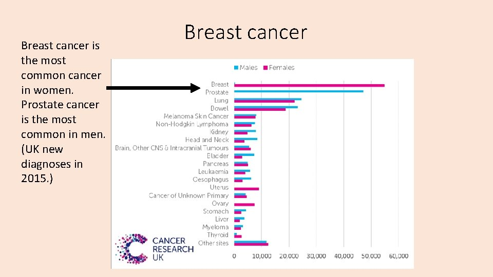 Breast cancer is the most common cancer in women. Prostate cancer is the most