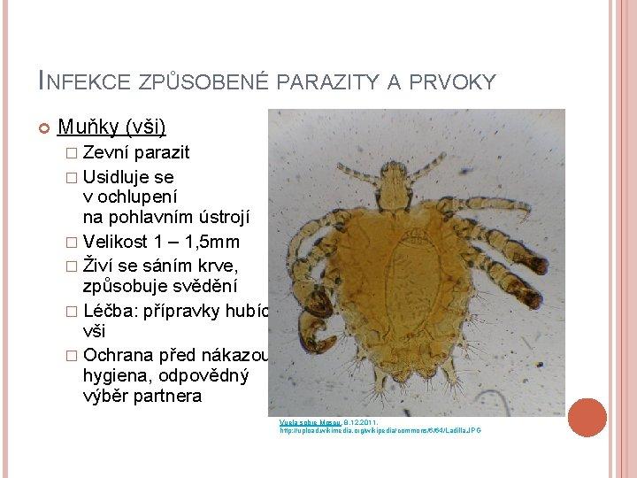 INFEKCE ZPŮSOBENÉ PARAZITY A PRVOKY Muňky (vši) � Zevní parazit � Usidluje se v