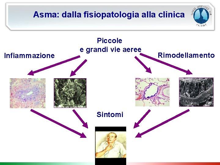 Asma: dalla fisiopatologia alla clinica Infiammazione Piccole e grandi vie aeree Sintomi Rimodellamento