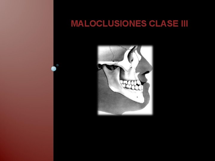 MALOCLUSIONES CLASE III