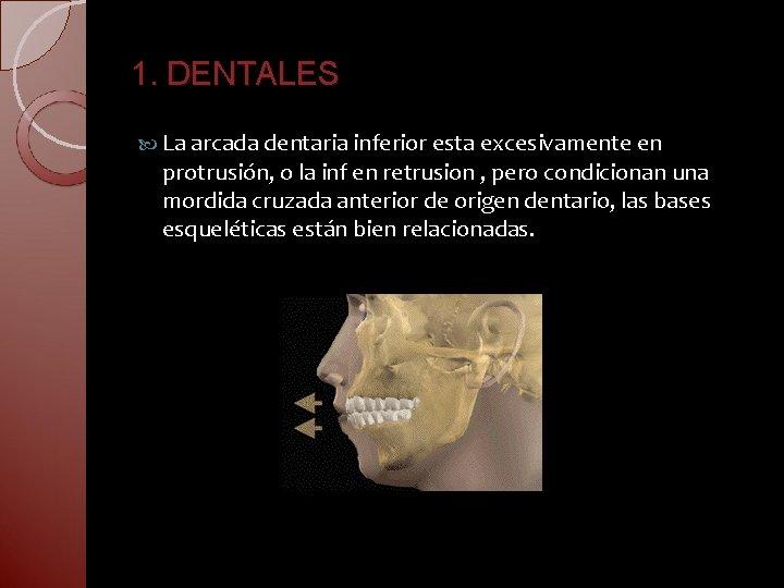 1. DENTALES La arcada dentaria inferior esta excesivamente en protrusión, o la inf en