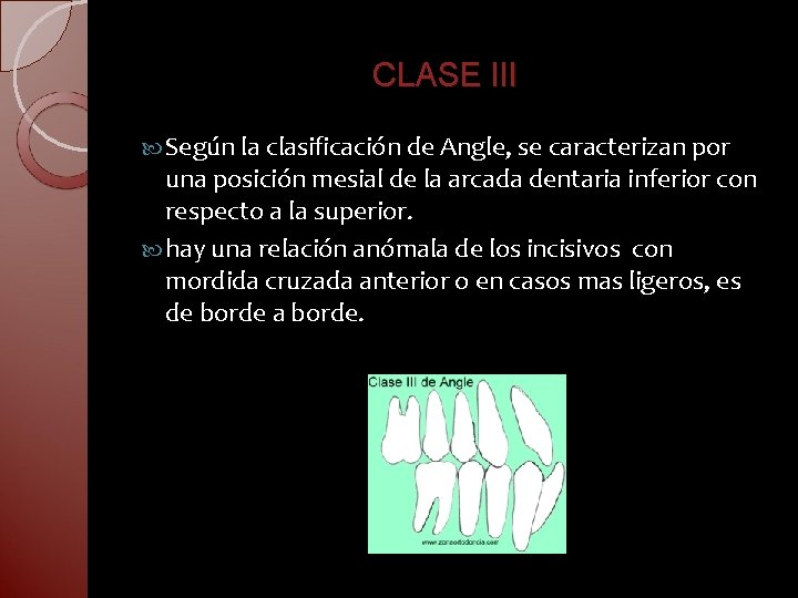 CLASE III Según la clasificación de Angle, se caracterizan por una posición mesial de