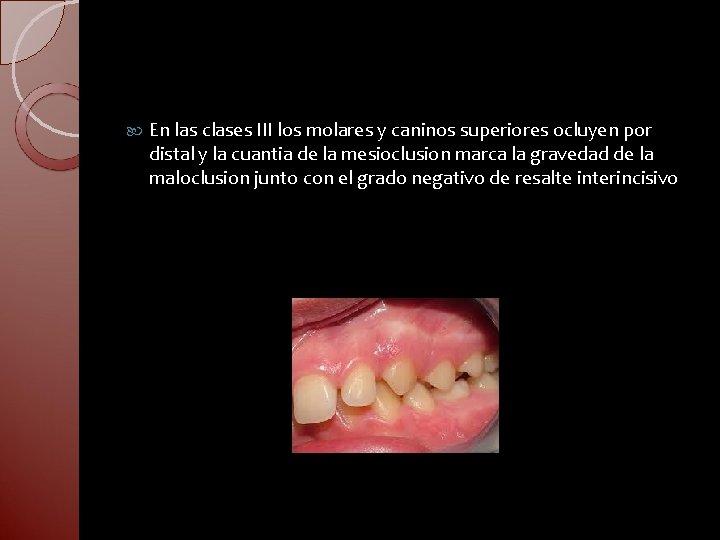 En las clases III los molares y caninos superiores ocluyen por distal y