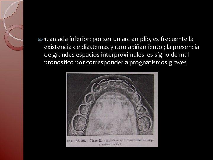 1. arcada inferior: por ser un arc amplio, es frecuente la existencia de