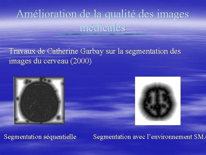 Amélioration de la qualité des images médicales Travaux de Catherine Garbay sur la segmentation
