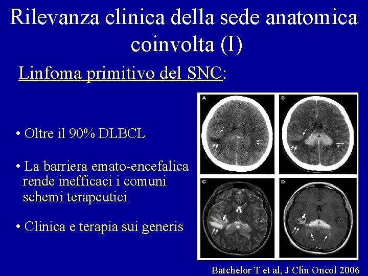 Rilevanza clinica della sede anatomica coinvolta (I) Linfoma primitivo del SNC: • Oltre il