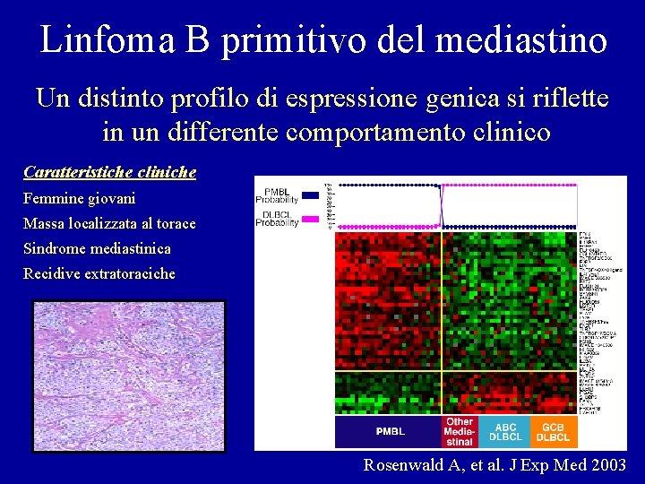 Linfoma B primitivo del mediastino Un distinto profilo di espressione genica si riflette in