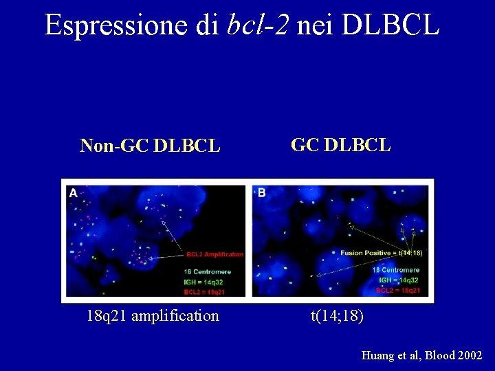 Espressione di bcl-2 nei DLBCL Non-GC DLBCL 18 q 21 amplification t(14; 18) Huang