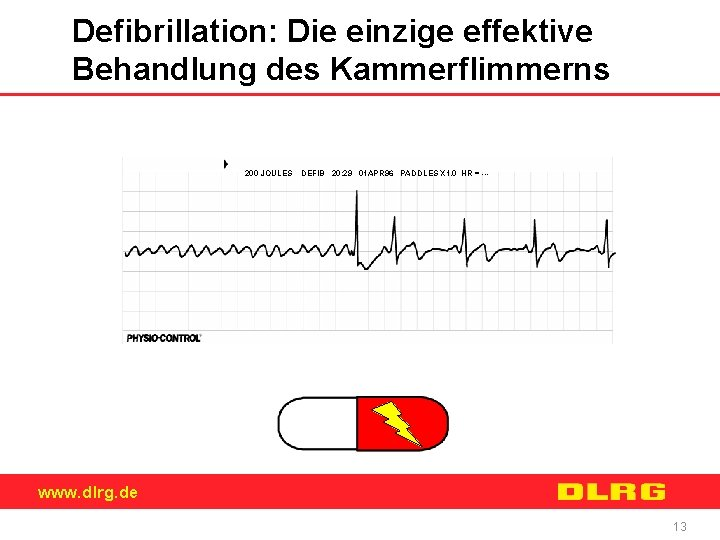 Defibrillation: Die einzige effektive Behandlung des Kammerflimmerns 200 JOULES DEFIB 20: 29 01 APR
