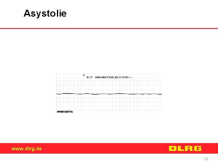 Asystolie 15: 17 29 MAR 96 PADDLES X 1. 0 HR = --- www.