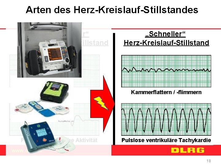 """Arten des Herz-Kreislauf-Stillstandes """"Langsamer"""" Herz-Kreislauf-Stillstand Asystolie Pulslose elektrische Aktivität """"Schneller"""" Herz-Kreislauf-Stillstand Kammerflattern / -flimmern"""