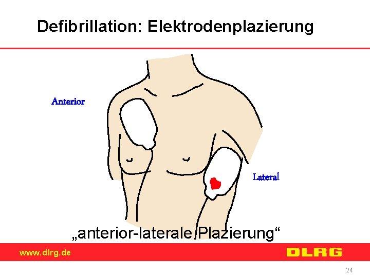 """Defibrillation: Elektrodenplazierung Anterior Lateral """"anterior-laterale Plazierung"""" www. dlrg. de 24"""