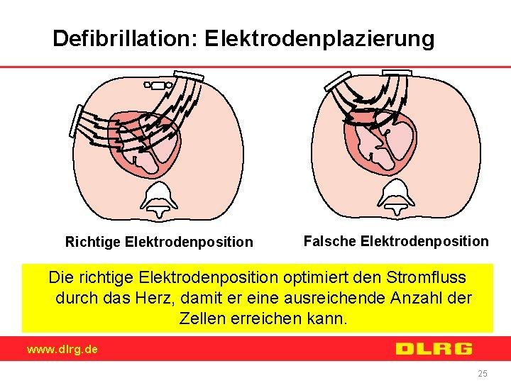 Defibrillation: Elektrodenplazierung Richtige Elektrodenposition Falsche Elektrodenposition Die richtige Elektrodenposition optimiert den Stromfluss durch das
