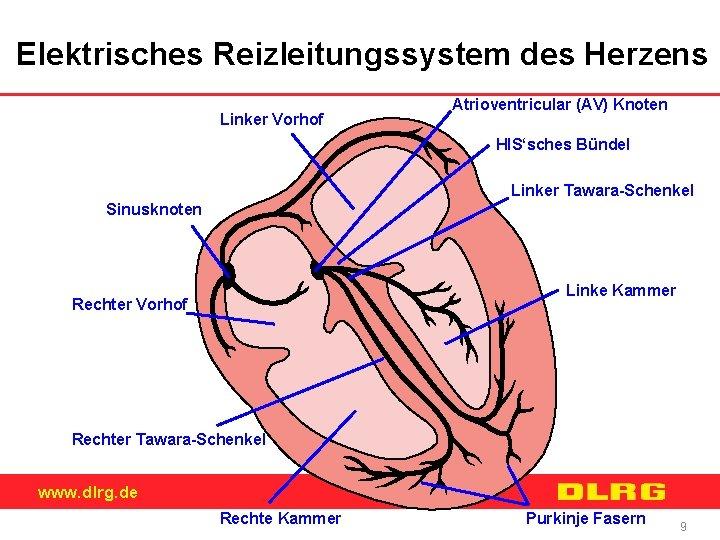 Elektrisches Reizleitungssystem des Herzens Linker Vorhof Atrioventricular (AV) Knoten HIS'sches Bündel Linker Tawara-Schenkel Sinusknoten