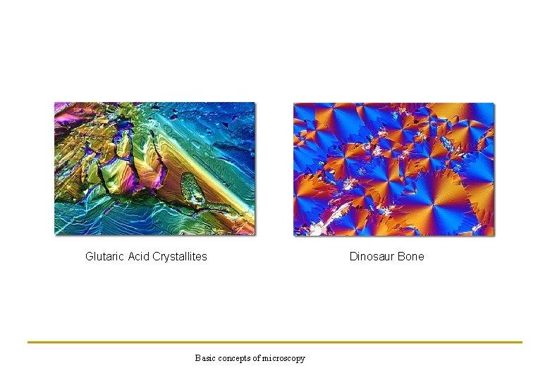 Glutaric Acid Crystallites Basic concepts of microscopy Dinosaur Bone