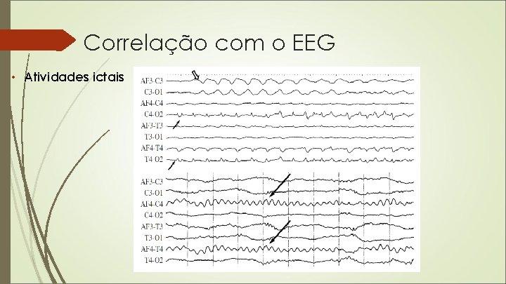 Correlação com o EEG • Atividades ictais