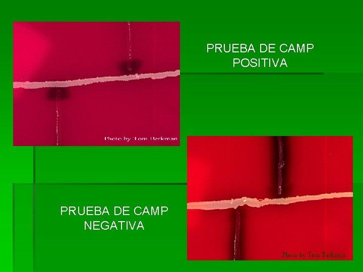 PRUEBA DE CAMP POSITIVA PRUEBA DE CAMP NEGATIVA
