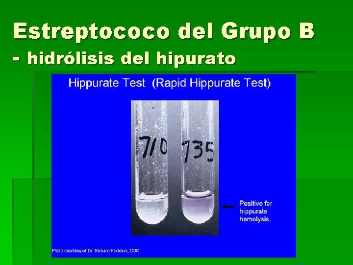 Estreptococo del Grupo B - hidrólisis del hipurato