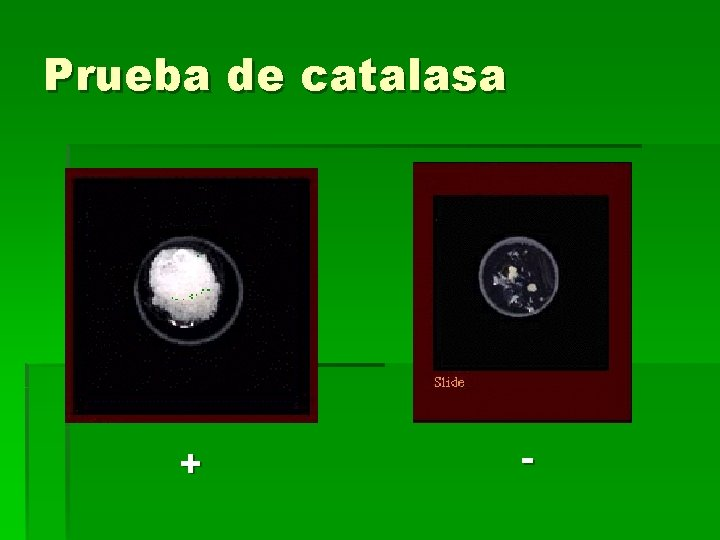 Prueba de catalasa + -