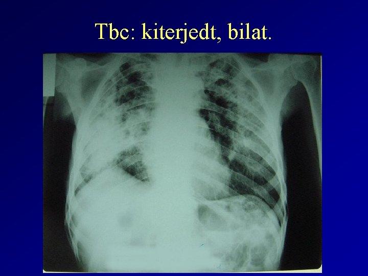 tuberkulózis parazita