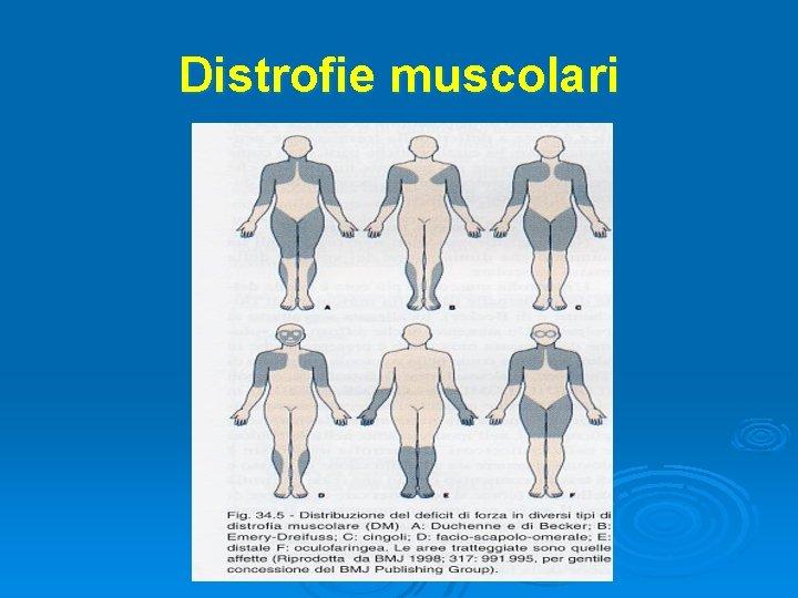 Distrofie muscolari
