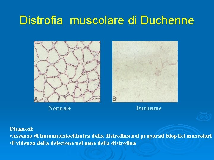 Distrofia muscolare di Duchenne Normale Duchenne Diagnosi: • Assenza di immunoistochimica della distrofina nei