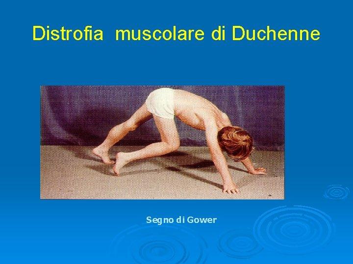 Distrofia muscolare di Duchenne Segno di Gower
